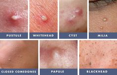 The Acne Whisperer: Adult Acne in the Presence of ...  Closed Vs Open Comedones