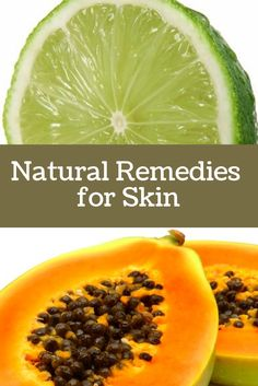 Want to fix simple skin problems the natural way? Here are few Natural Remedies for Skin Issues like Enlarged Pores, Blemishes, Marks, etc. Natural Beauty Remedies, Natural Beauty Tips, Organic Skin Care, Natural Skin Care, Healthy Skin Tips, Facial Cleansers, Skin Care Remedies, Face Skin Care, Skin Cream