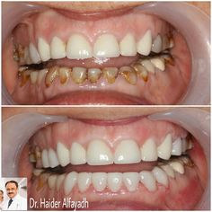 Age Doesn't Matter in Cosmetic Dentistry.  Dr. Haider @drhaideralfayadh placed Emax Veneers in upper & lower front area of a 75 year old patient.  #qatar #ksa #kuwait #uae #emirates #dubai #oman #lebanon #germany #jordan #usa #bahrain #bahrainclinic #bahraindental #dental #dentalclinic #specialists #dentist #smile #cosmetic #emax #veneer #implantologist #dentalclinicbahrain #visityourdentist #dentistinbahrain #drhaideralfayadh