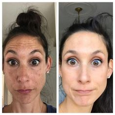 While melasma may seem impossibly tricky and incredibly stubborn, there is hope to treat this condition. Between brightening ingredients, skincare services and vigilant sun prevention, you can take on your melasma! Dark Spots On Face, Dark Patches On Face, Face Aesthetic, Skin Resurfacing, Skin Spots, Skin Clinic, Skin Treatments, Scar Treatment, Acne Scars
