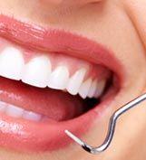 Denta Seal Teeth Whitening Cost, Charcoal Teeth Whitening, Teeth Implants, Dental Implants, Tartar Removal, Dental Check Up, Perfect Teeth, Tooth Sensitivity, Tooth Enamel