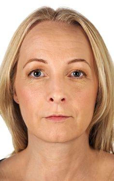2) Restylane. Después: líneas de preocupación, surcos nasogenianos, líneas de la sonrisa, perfilado del labio, volumen del labio, rejuvenecimiento facial