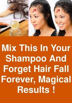 Mix this in your Shampoo and forget hair fall forever magical results ! Mix this in your Shampoo and forget hair fall forever magical results ! Stop Hair Loss, Prevent Hair Loss, Best Hair Loss Treatment, Natural Hair Treatments, Skin Treatments, Excessive Hair Loss, Hair Falling Out, Regrow Hair, Hair Loss Remedies