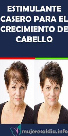 HairLoss – Hair Care Tips and Tricks Beauty Secrets, Beauty Hacks, Mascara Hacks, Cabello Hair, Brown Spots On Face, Baking Soda Shampoo, Donia, Hair Loss Shampoo, Reduce Cellulite