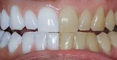 Unbelievable Tips: He mixed 2 ingredients and passed .- Dicas Inacreditáveis: Ele misturou 2 ingredientes e passou nos dentes. O… Unbelievable Tips: He mixed 2 ingredients and brushed his teeth. Coconut Oil For Teeth, Coconut Oil Pulling, Coconut Oil Uses, Teeth Whitening Remedies, Natural Teeth Whitening, Tumeric For Teeth Whitening, Tumeric Toothpaste, Natural Toothpaste, Skin Whitening