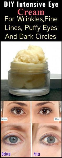 If you're not getting enough sleep, your eyes may look tired, puffy, and saggy. Even if you ARE getting enough sleep, our eyes will start to droop with age, but this homemade intensive eye cream can fix all of that without all the harmful ingredients. The problem with store bought eye creams is that they …