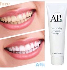 Best Teeth Whitening Kit – Pick Your Choice Best Whitening Toothpaste, Whitening Fluoride Toothpaste, Teeth Whitening Remedies, Natural Teeth Whitening, Nu Skin, Dental Cosmetics, Cosmetic Dentistry, Teeth Cleaning, Natural Skin Care