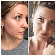 Discover the best supplements for acne prone skin. Acne-friendly supplements to balance hormones and heal digestion. Best acne supplements available online. Back Acne Treatment, Natural Acne Treatment, Acne Skin, Acne Prone Skin, Oily Skin, Vitamin A Acne, Vitamin B12, Retinol For Acne, Beauty
