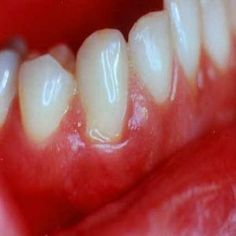 Natural cures for receding gums