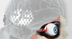 """""""3D Printed Bionic Eye Seeks to Allow People with Vision Loss to See Again"""" - 24/11/14.     Thumbs up to the researchers at the Bionics Institute, 3D Systems' ProJet 1200 3D printers and evok3d!"""