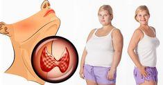 hypothyroid-diet