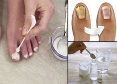 """They Call It The """"Mushroom Breaker"""" Why One-Sided Eliminates All Nail Fungi Health Remedies, Home Remedies, Natural Remedies, Manicure Y Pedicure, Nail Fungus, Feet Care, Fungi, Healthy Tips, Skin Care Tips"""