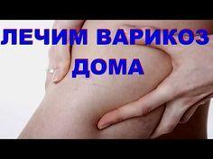 Упражнения от варикоза. Лечим без таблеток и операций. - YouTube