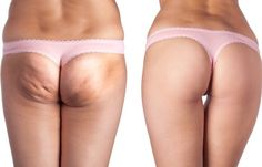 The Best Natural Treatments for Cellulite