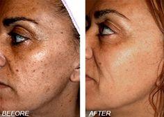 Lébo Skin Care Center : Photorejuvenation