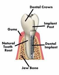 The difference between dental implants and porcelain veneers is quite simple to understand. To put it simply, an implant replaces a missing tooth, while, porcel Dental Implant Procedure, Implant Dentistry, Cosmetic Dentistry, Dental Procedures, Dental Teeth, Dental Care, Dental Hygienist, Dental Humor, Wellness