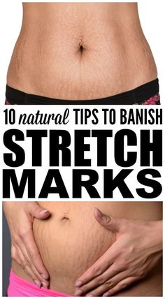 Want to know how to get rid of stretch marks fast on your stomach, thighs, butt,… - Fitness Stretch Mark Remedies, Stretch Mark Removal, Stretch Marks On Arms, Tattoos On Stretch Marks, How To Get Rid Of Stretch Marks, Skin Care Regimen, Skin Care Tips, Mac Cosmetics, Looks Black