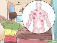 """How to Get Rid of Knots in Your Back. Whether you lift weights for a living or you sit at your computer for eight hours a day, you're susceptible to getting those pesky knots in your back. These knots, also known as """"trigger points,"""" occur. Neck And Shoulder Exercises, Back Exercises, Body Stretches, Muscle Knots In Back, Shoulder Knots, Muscle Spasms, Costa, Trigger Points, Back Pain Relief"""
