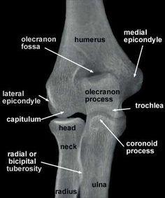 Radiología del Codo - vista antero - posterior. Clínica de Artrosis y Osteoporosis www.clinicaartrosis.com PBX: 6836020