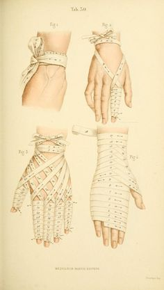 Manual of Surgical Bandages, Devices and Dressings 1859