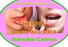 medicamento para herpes en la boca