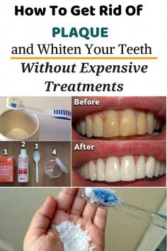Watch This Video Fantasting All-Natural Home Remedies To Whiten Teeth Ideas. All Time Best All-Natural Home Remedies To Whiten Teeth Ideas. Teeth Whitening Methods, Charcoal Teeth Whitening, Natural Teeth Whitening, Whitening Kit, Charcoal Toothpaste, Teeth Health, Healthy Teeth, Oral Health, Health Heal