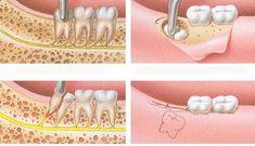 Sưng nướu răng khôn khắc phục thế nào? | Thẩm mỹ 3D