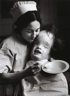 Nurse and hydrocephalic child, by Lord Snowdon. A medical condition in which there is an abnormal accumulation of cerebrospinal fluid (CSF) in the ventricles, or cavities, of the brain.