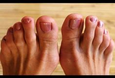 A bunion is a lump of bone is formed in the big toe at the base joint. It is formed whenever you wear tight shoes or due to some injury at that point.