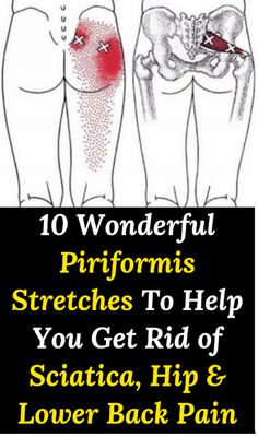 10 Wonderful Piriformis Stretches To Help You Get Rid of Sciatica, Hip & Lower Back Pain – Positive Thinking & Self Help Community Sciatica Stretches, Sciatica Relief, Sciatic Pain, Piriformis Exercises, Hip Pain Relief, Lower Back Pain Relief, Hip Extension Exercise, Jiu, Physical Therapy