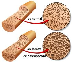 Take this Osteoporosis quiz to test your knowledge about foods that may help reduce the risk for developing low bone density, osteopenia and osteoporosis. Arthritis Diet, Rheumatoid Arthritis, Menopause And Depression, Bone Fracture, Calcium Supplements, Bone Diseases, Menopause Symptoms, Arthritis Treatment, Back Pain
