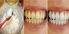 Natural Teeth Whitening Remedies 4 Natural Ways to Whiten Teeth Overnight at Home Teeth Whitening That Works, Teeth Whitening Remedies, Natural Teeth Whitening, Whitening Kit, Tooth Decay Treatment, Get Whiter Teeth, Baking Soda And Lemon, Stained Teeth, Teeth Care