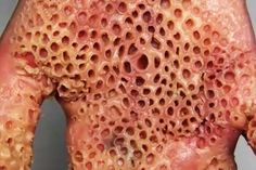 21 Best Feet Skin Images Trypophobia Phobias Skin