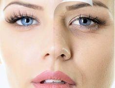 Φθινοπωρινή αντιγήρανση Express!! Ανανεώστε δραστικα τα κύτταρα της επιδερμίδας σας με υδρολυμένο κολλαγόνο θαλάσσης Bio Jouvance Paris . Η ενισχυμένη ενεργή μάσκα με αντιοξειδωτικά χαρίζει λάμψη και σύσφιξη. Η θεραπεία περιλαμβάνει τεχνικό massage για ανόρθωση και τόνωση του περιγράμματος του προσώπου. Διάρκεια 40΄  Κλείστε τώρα το ραντεβού σας!  http://www.urbaneskin.com/urbaneskin-kolonaki/ #urbaneskin #antiage