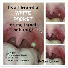 How I Healed a White Pocket on my throat naturally! Kara explains in detail what she did, and also shows pictures of her progress. If possible, more natural ways to heal are better. Holistic Remedies, Natural Health Remedies, Natural Cures, Natural Healing, Home Remedies, Natural Life, Sore Throat Remedies For Adults, Strep Throat Remedies Natural, Dry Throat Remedy