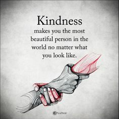 'Kindness makes you the most beautiful person in the world no matter what you look like'
