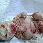 Baby of Fallujah. use of toxic, depleted uranium in (Warning: Picture can shock. Aliens, Depleted Uranium, The Book Of Eli, What Is Human, Nuclear Disasters, Nuclear Energy, War Image, Vintage Medical, Bizarre