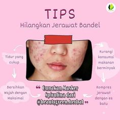 Skin Tips, Skin Care Tips, Pores, Face Skin Care, Healthy Beauty, Best Anti Aging, Pimples, Beauty Routines, Body Care