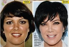 Kris Jenner Plastic Surgery Before and After Photos Nose Job, Facelift and Breast Implants lip injection 4
