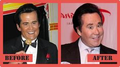 Wayne Newton Plastic Surgery Before And After Wayne Newton Plastic Surgery #WayneNewtonPlasticSurgery #WayneNewton #celebritypost