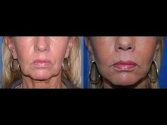 Cheek Building Exercises To Make Your Face Fuller And Reduce Saggy Skin Sagging Cheeks, Sagging Face, Face Skin, Face And Body, 3 Face, Face Lift Exercises, Facial Yoga, Face Massage, Tips Belleza