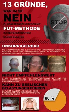 FUT Haarverpflanzung Haartransplantation Streifenmethode Nachher Fotos Ergebnisse Donor zone 6/6