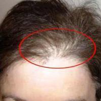 Вот это да! Натуральный способ укрепить волосы и навсегда избавиться от седины!   Интересные статьи от друзей, здоровье, красота, путешествия , советы