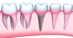 To reduce risk, your dental implant surgeon at Pennsylvania needs to evaluate the quality of the jaw bone prior to surgery. This will help in deciding the place and area for dental implant increasing the chances of the successful implant. Implants Dentaires, Dental Implants, Dental Hygienist, Dental Health, Dental Care, Oral Health, Dental Group, Dental Center, Dental Implant Procedure