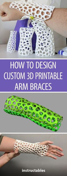 Upgrade from non-breathable plaster casts to customized printed braces. To make one, you'll need a scanner and a copy of Meshmixer and Rhino software, with Grasshopper, the algorithmic modeling plugin installed. (Remember to get approval from your 3d Printer Designs, 3d Printer Projects, Impression 3d, 3d Prints, Poster Prints, 3d Printed Objects, 3d Printed Art, Rhino 3d, 3d Scanners
