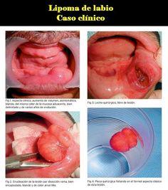 Lipoma de labio. Caso clínico | OVI Dental