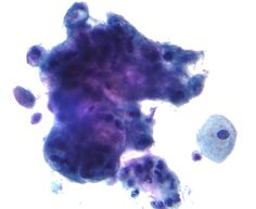 The presence of cancer (adenocarcinoma) detected on a pap test
