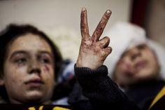 Un informe reciente de la UNICEF reveló que el 2016 se convirtió en el año más mortífero para los niños sirios, dejando un saldo de casi mil fallecimientos.