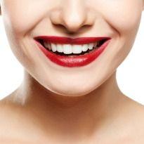 Top 5 Teeth Whitening Home Remedies! #HomeRemedies #whitesmile