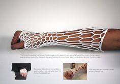 New technology in cast making that allows you the ability to scratch and wash your broken limb while healing. Incredible!